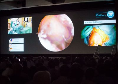 Annecy-live-surgery-2015-0130