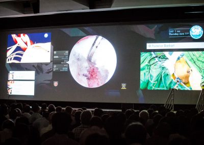 Annecy-live-surgery-2015-0343