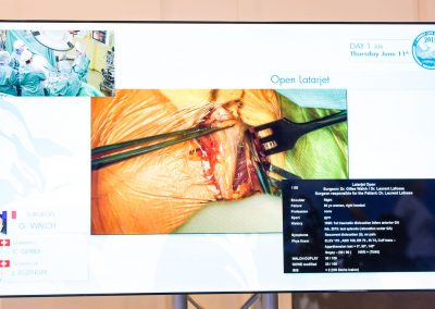 Annecy-live-surgery-2015-0428