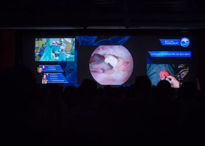 Annecy-Live-Surgery-2017-3533