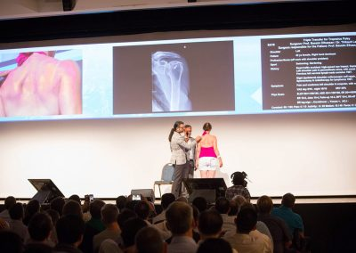 Annecy-Live-Surgery-2017-3645